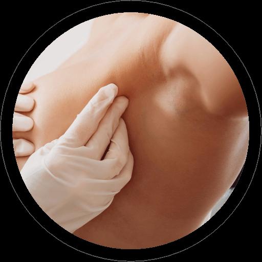 Chirurgia Ricostruttiva Mammaria