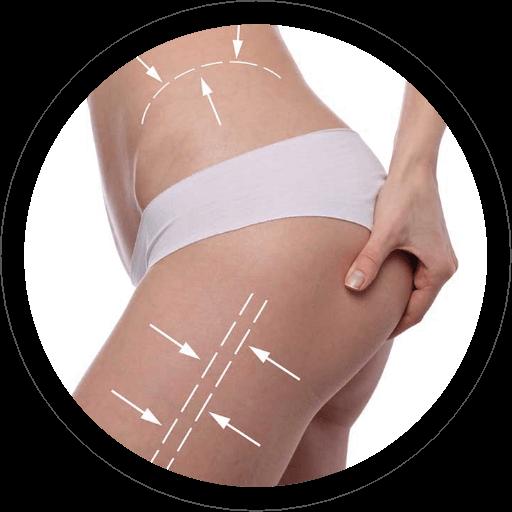 Liposcultura - Liposuzione